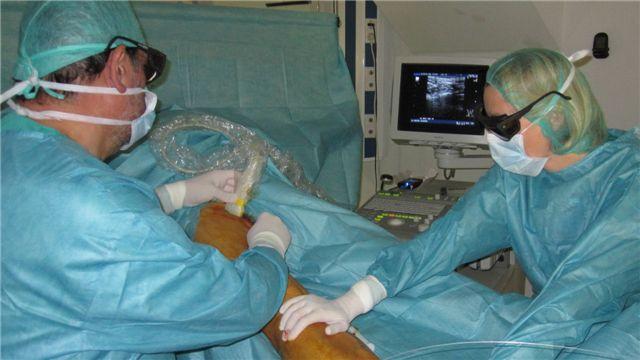 El Tratamiento De Las Varices Con Laser Endovascular Sin