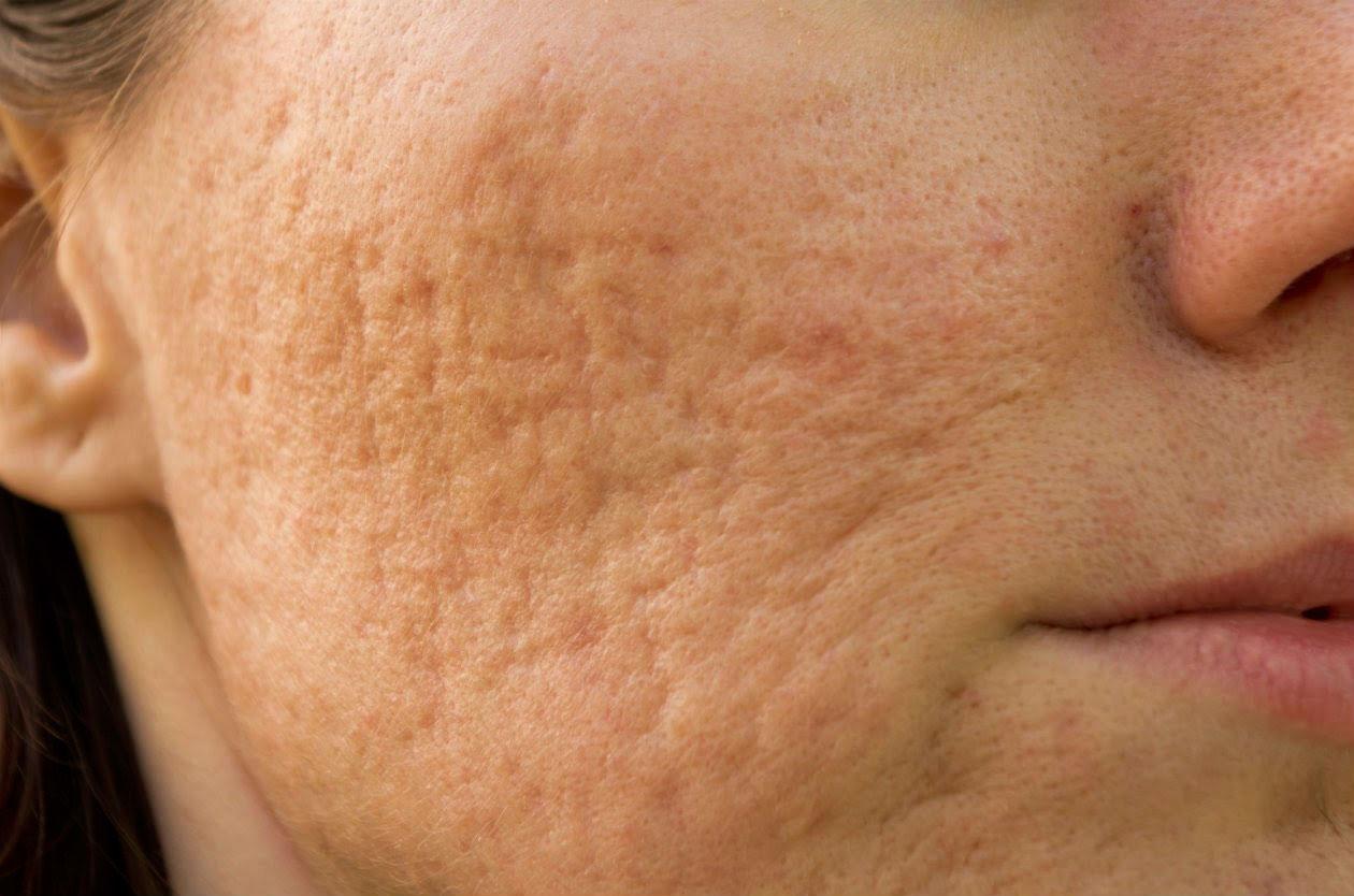 Eliminación de cicatrices