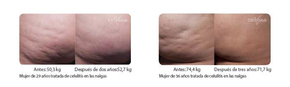 Resultados Cellfina 2