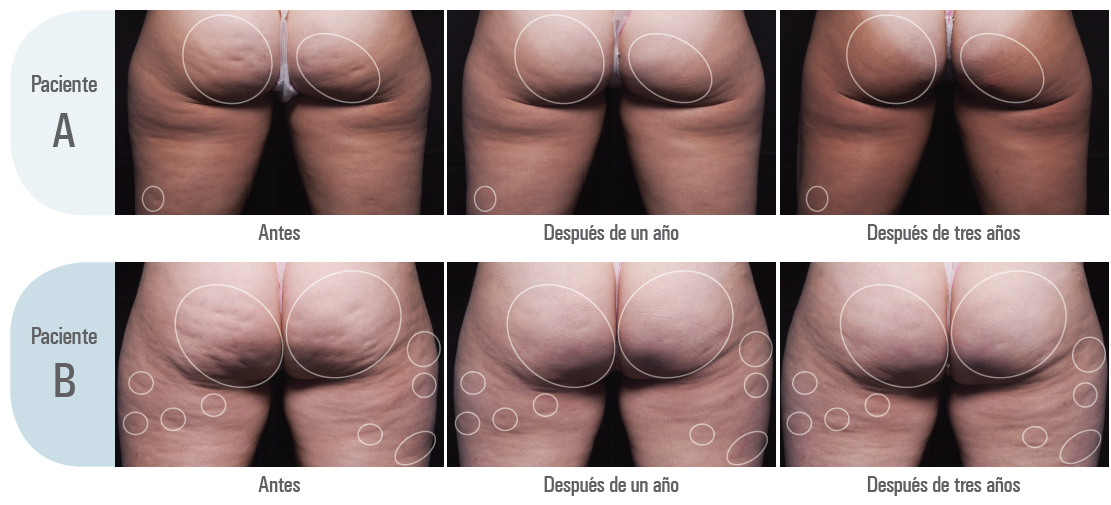 resultados Cellfina