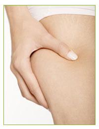Mesoterapia Homeopática. Complemento fundamental en la Terapia Anticelulitica.