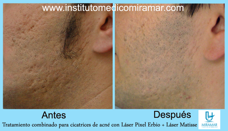 TRATAMIENTO DE CICATRICES DE ACNE | Instituto Médico Miramar