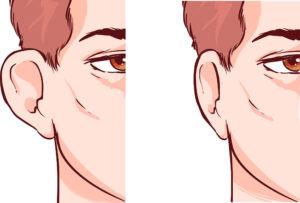 cirugía de orejas en Málaga - Antes y Después