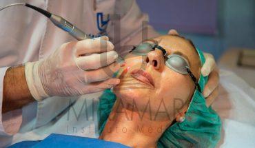Lesiones pigmentarias benignas